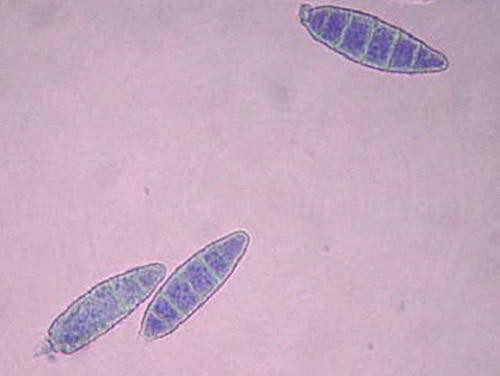 Вид грибка под микроскопом