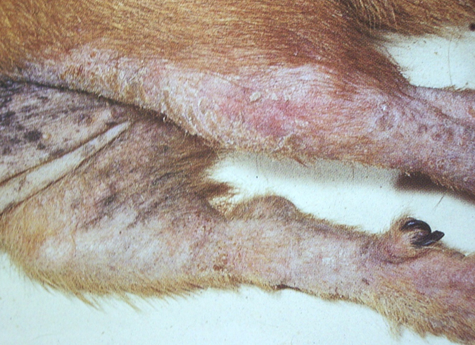 Коксартроз тазобедренного сустава 2 степени лечение без операции фото