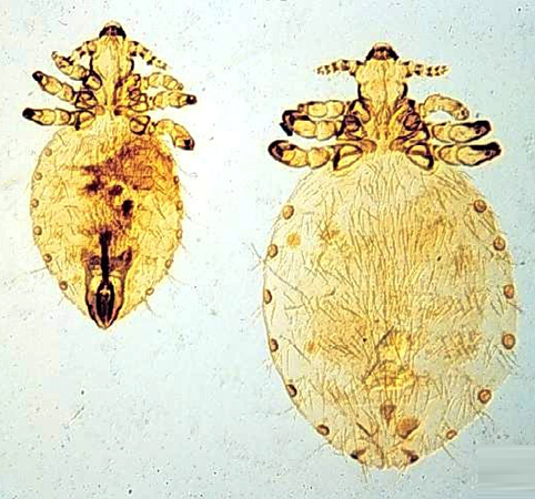 Linognathus setosus