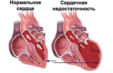 Нормальное сердце и недостаточность