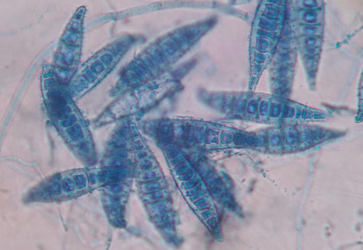 Грибок Microsporum